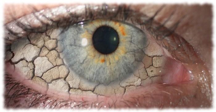 dry-eye-