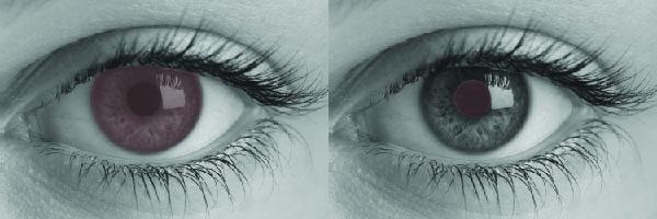 migraine_eye_double
